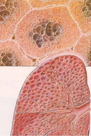 (ネッター解剖生理学アトラス:南江堂から) 肺の肺胞が壊れてつぎつぎに... 無題ドキュメント
